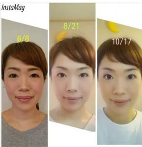 顔のヨガ・4か月後の効果